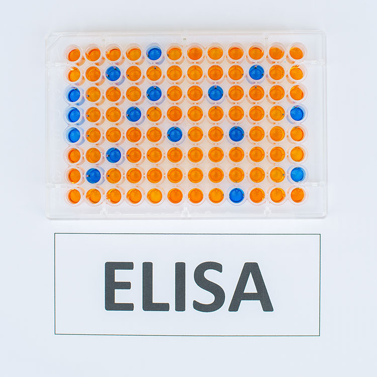 Top 5 criteria for selecting your ELISA kits