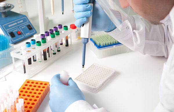 HIV-1 p24 ELISA kit test