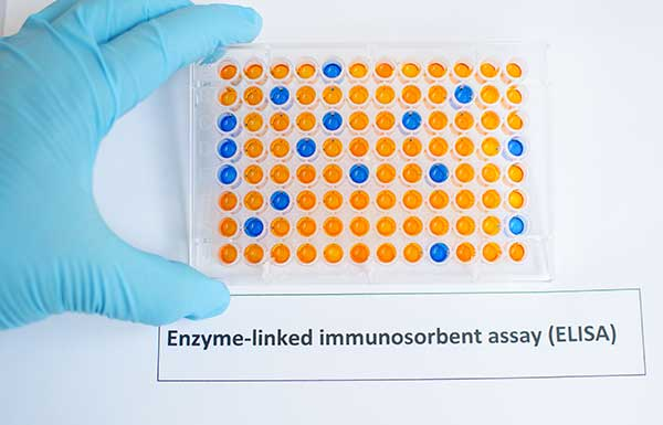 Enzyme-linked Immunosorbent Assay Principle and Elisa Test Procedures.
