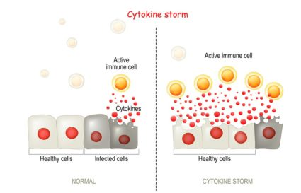 All You Need to Know about the COVID-19 Cytokine Storm